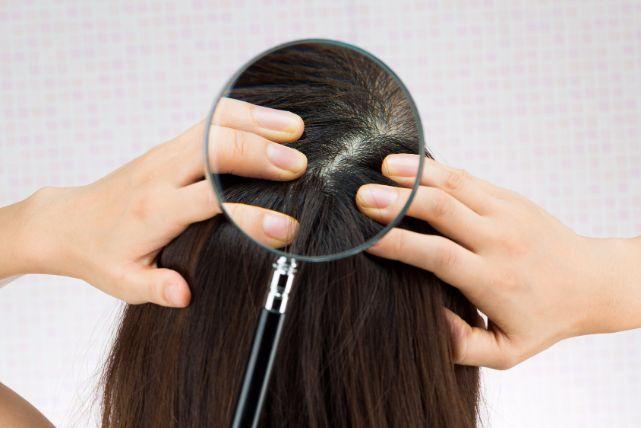 頭皮の乾燥はトラブルの元!美髪になるための保湿習慣
